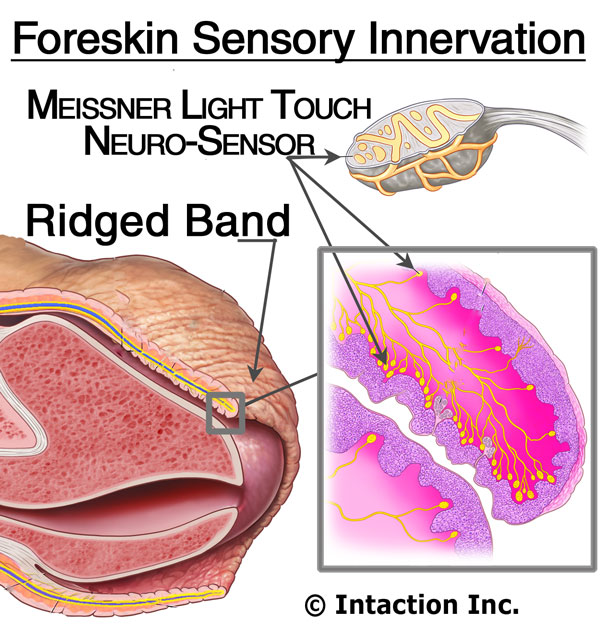 foreskin intaction circumcision