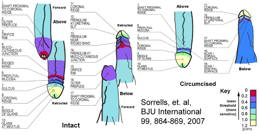 penis sensitive before after circumcision