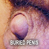 what is circumcision botched buried penis