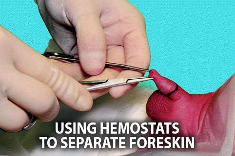 circumcision hemostat procedure foreskin
