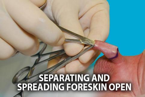 circumcision procedure hemostat separating foreskin
