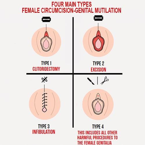 circumcision FGM female mutilation