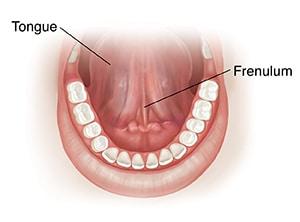 lingual frenulum foreskin